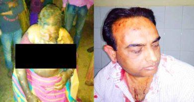 ballia women burned and doctor beaten