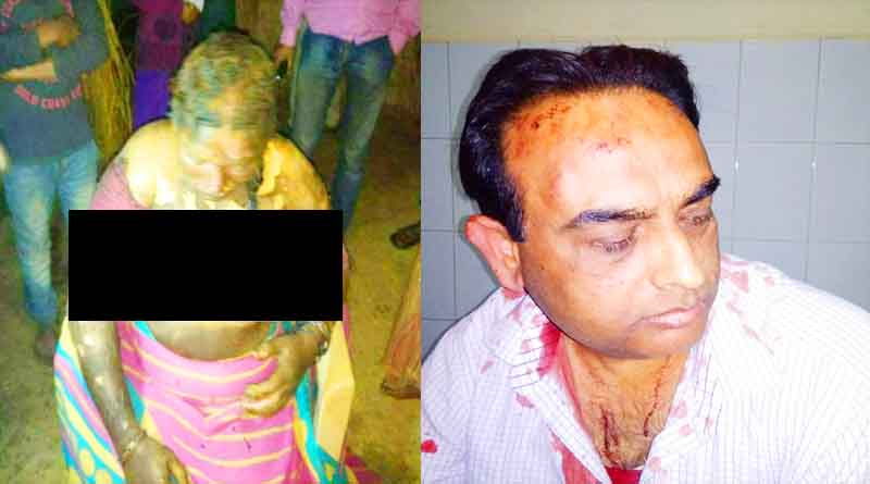 ballia women burned and doctor beaten